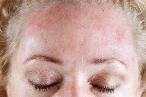 Лечение и симптомы дерматита на лице