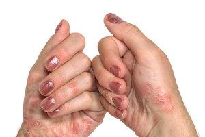 Причины и методы лечения псориаза на руках