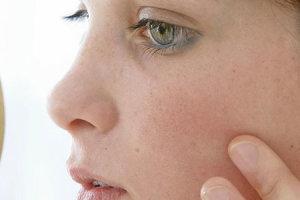 Как начинается псориаз: первые признаки заболевания
