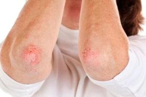 Симптомы и лечение экземы