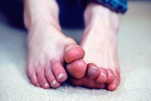 Что делать при обморожении пальцев ног и рук?