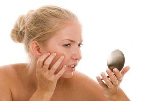 Лечение перорального дерматита и основные причины возникновения