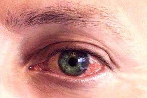 Лечение и симптомы герпеса на глазу