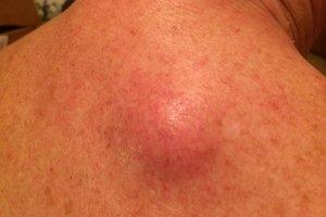 Атерома на спине: причины и методы лечения