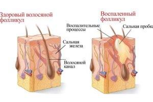 Воспаление волосяных луковиц: основные причины, симптомы и лечение