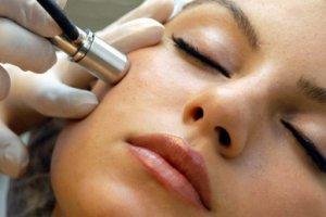 Как убрать папилломы на лице: методы удаления