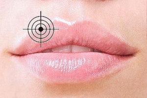 Как быстро вылечить герпес на губе?