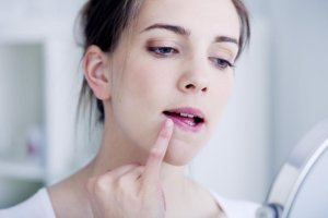Самые эффективные мази от герпеса на губах