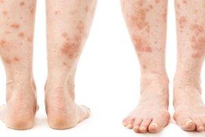 Лечение и симптомы дерматита на ногах