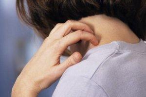 Основные симптомы псориаза