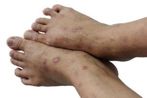 Лечение и причины экземы на ногах