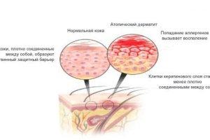 Виды дерматитов: подробное описание, лечение, фото
