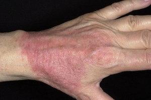 Симптомы и методы лечения атопического дерматита