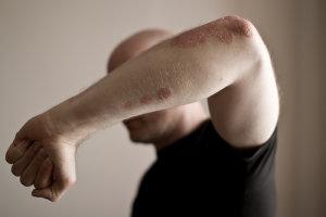 Вульгарный псориаз: фото и основное лечение
