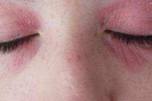 Как правильно вылечить аллергический дерматит на лице?