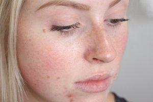 Как быстро устранить шелушение на носу: маски, крема