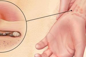 Что такое чесотка: основные симптомы и методы лечения
