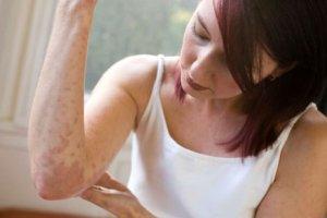Заразен псориаз или нет: что говорят врачи?