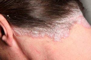 Как правильно лечить дерматит на голове