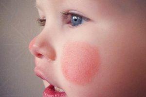 Что делать при обморожении щек у ребенка?