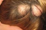 Атерома на голове