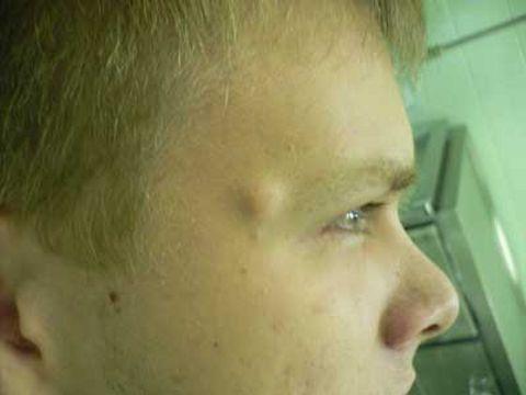 кисты на лице. фото