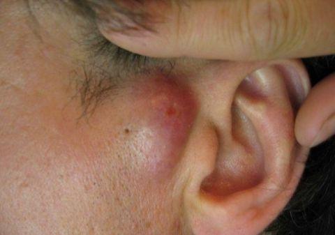 Виды кист сальных желез 85