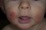 Атопический дерматит у детей (фото 3)
