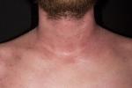 Атопический дерматит на шее у взрослых