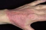 Атопический дерматит на кисти рук