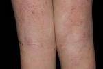 Атопический дерматит (фото 3)