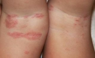 лямблии и атопический дерматит у детей узаконить