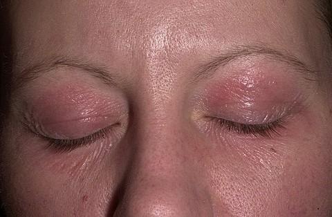 Аллергический дерматит на глазах лечение