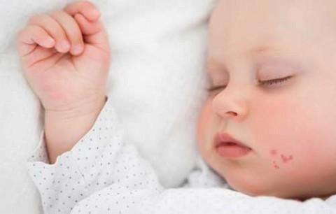 герпес у новорожденных фото