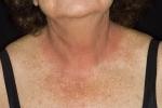 Контактный дерматит (фото №1)
