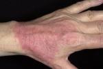 Контактный дерматит (фото №4)
