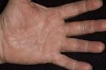 Ладонно-подошвенный псориаз (фото №4)