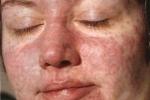 Макулопапулезная сыпь (фото №3)