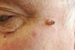 Папиллома на лице (фото 4)