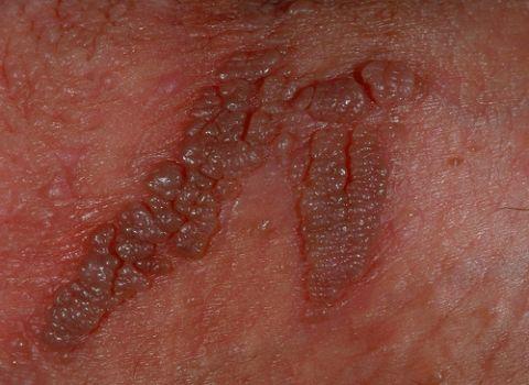 Я вылечила папилломавирус 16