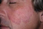 Псориаз на лице (фото №2)