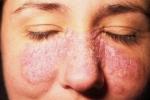 Псориаз на лице (фото №3)