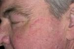 Псориаз на лице (фото №4)