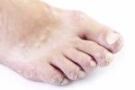 Псориаз на ногах (фото №1)