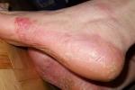 Псориаз на ногах (фото №4)