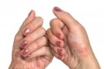 Псориаз на руках (фото №1)