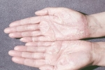 Псориаз на руках (фото №4)
