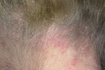 Псориаз волосистой части головы (фото №3)