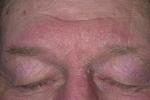 Себорейный дерматит на лице (фото 1)