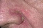 Себорейный дерматит на лице (фото 2)
